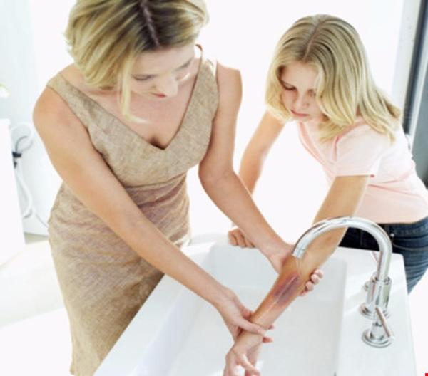 Sơ cứu bỏng đúng cách tránh để lại sẹo và những điều cần biết